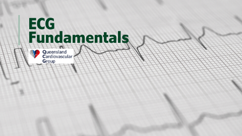 12Lead ECG Fundamentals Course Queensland Cardiovascular Group (QCG)