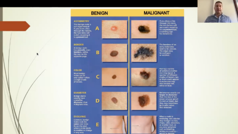 Melanoma Update for General Practice with Dr Dan Walker